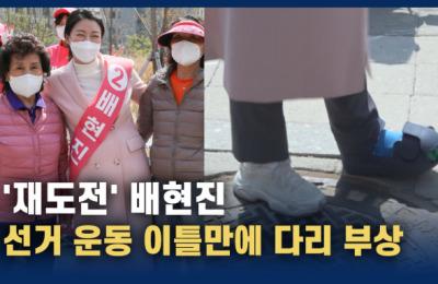 '재도전' 배현진, 선거 시작 이틀 만에 다리 부상
